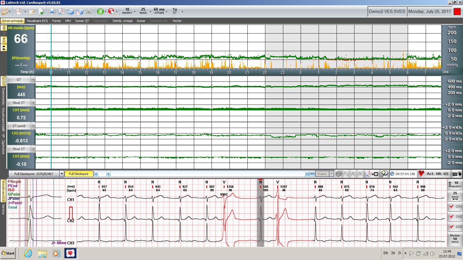 Holter ECG - ecran principal